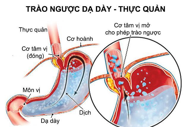 Báo động bệnh ung thu thực quản do trào ngược dạ dày